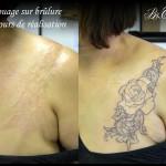 Tatouage sur brûlure