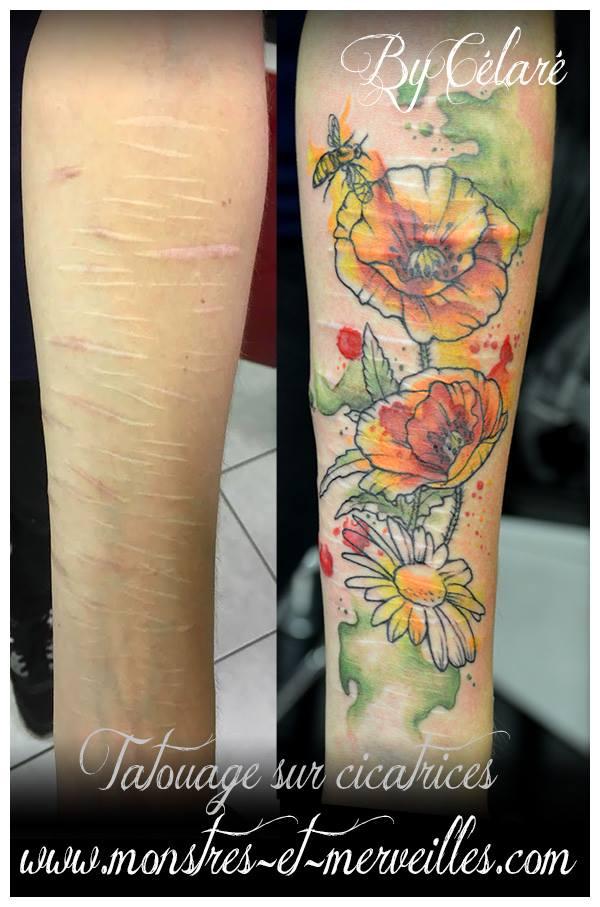Aquarelle sur cicatrices